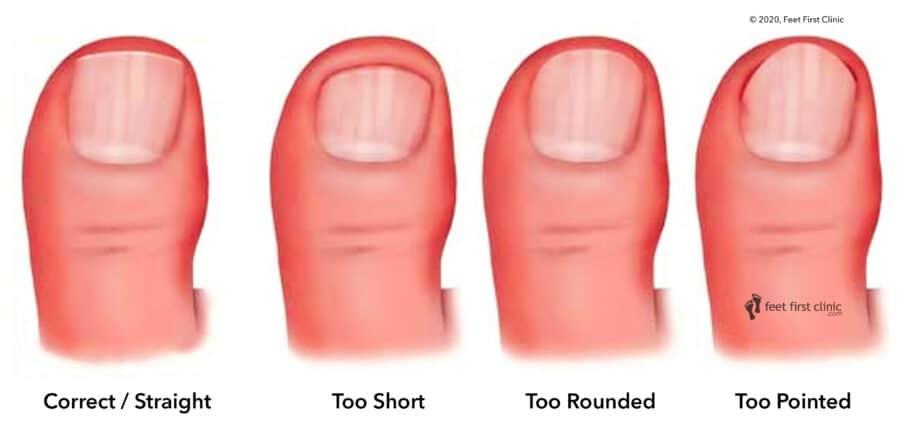 toenailcut
